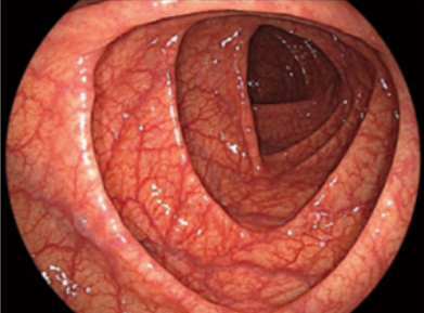 白色光観察・大腸