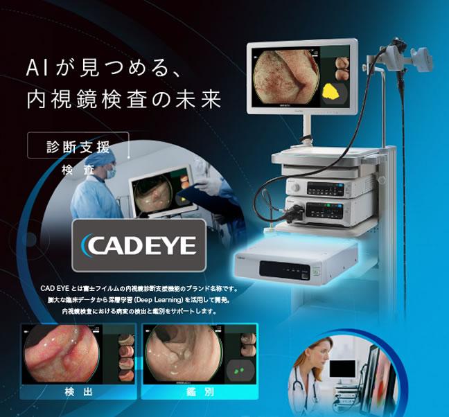 AIが見つめる、内視鏡検査の未来CADEYE